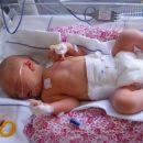 4.dan po porodu sem še vedno poteboval kisik in sondico za hranjenje